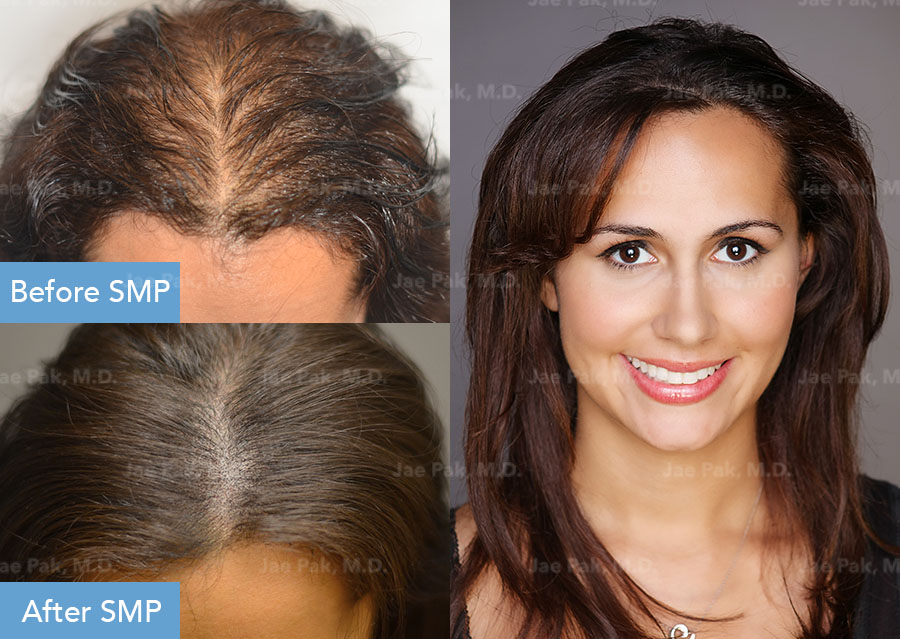 Before and After SMP Treatment for Female Patient