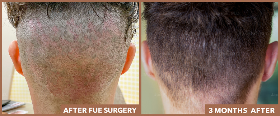 Back of Scalp - Scars from FUE After Procedure and 3 Months Later