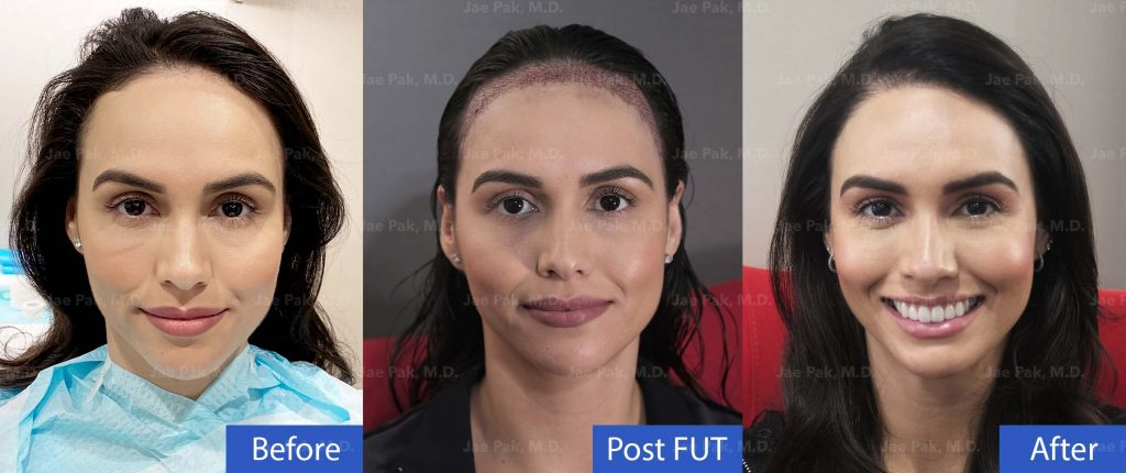 Hairline Lowering Patient Before, Post Procedure and After
