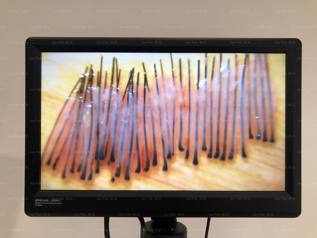 Perfect FUE Grafts for Quality Control at Jae Pak MD Medical
